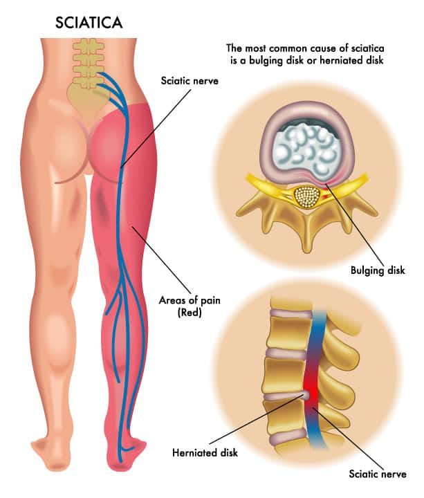 Answers to Sciatica Questions