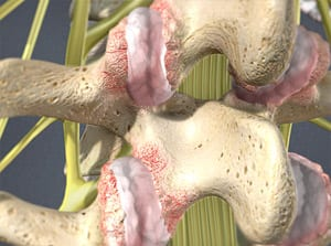 What Hurts in my back - Facet Syndrome