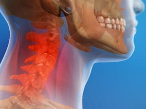 What Hurts in my Neck - Whiplash Disorders