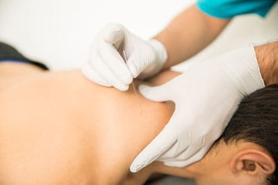 Dry Needling for Knotted Muscles