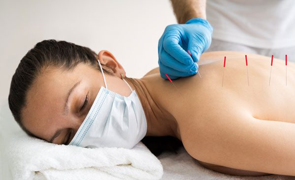 Relaxed patient receiving dry needling treatment