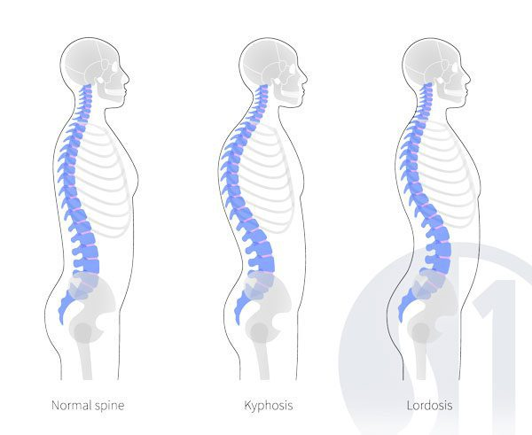 The difference between Kyphosis and Lordosis